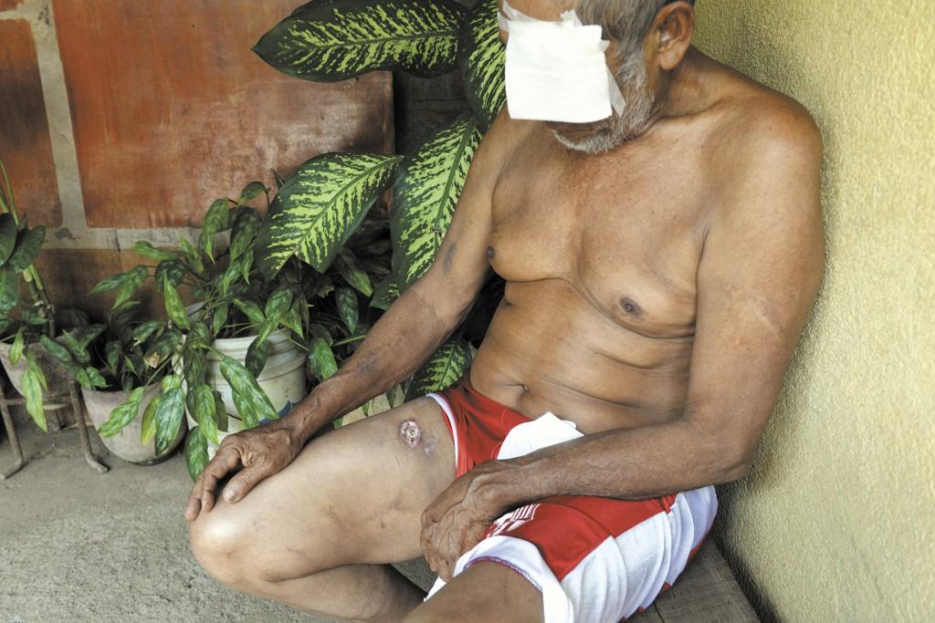 Por temor a represalias José María Calderón  no quiere acudir a un centro asistencial a que le realicen curaciones.  LA PRENSA/O. NAVARRETE