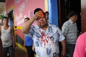 Un herido se registró tras un breve enfrentamiento en la casa departamental del FSLN. La Prensa/D. López