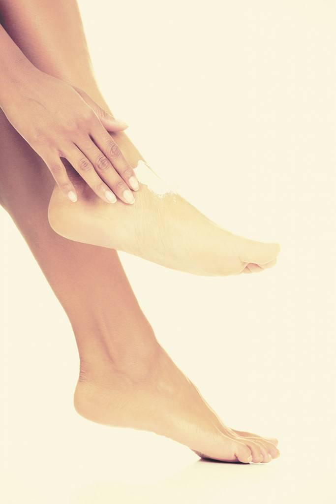 El pie diabético  demanda mucho cuido para evitar mayores complicaciones.