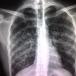 Reducen el cáncer de pulmón más agresivo
