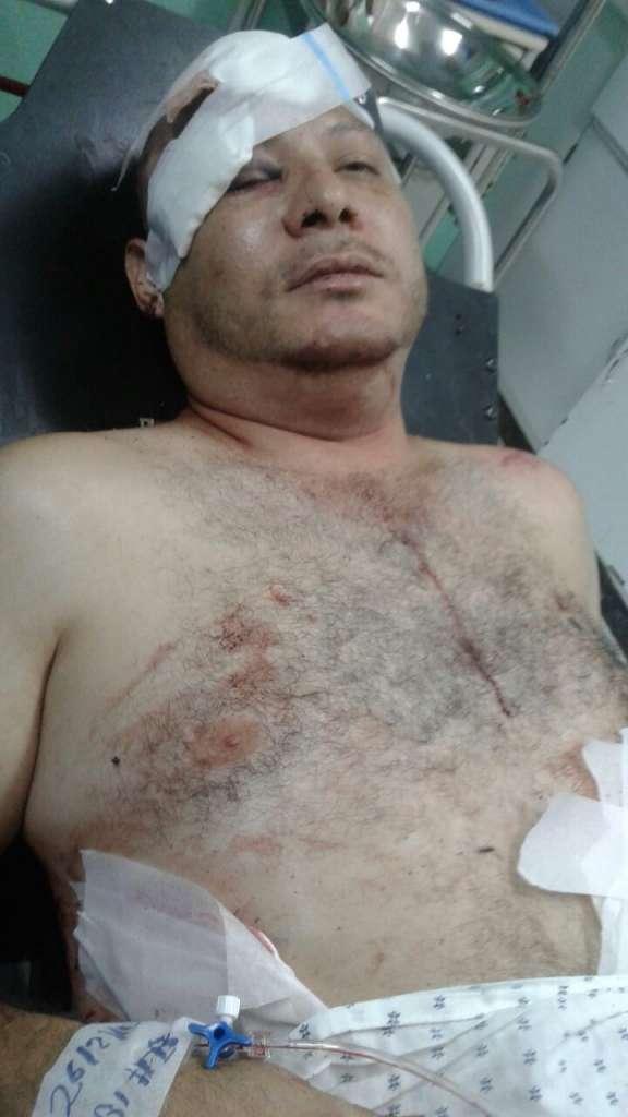 Carlos Bonilla se encuentra en un hospital de Managua. LA PRENSA/Cortesía