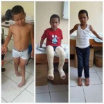 Niño de ocho años caminará sin problemas