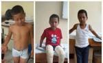 Osbin Hared Acuña nació con sus pies deformados. Gracias al doctor Oswaldo Reyes Lanzas, quien lo operó, el niño ha mejorado. LA PRENSA/W.ARAGÓN