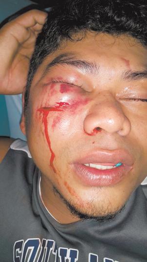Jerling Alberto González López (de 25 años)quedó desmayado y con el rostro ensangrentado producto de que un policía le propinara una patada en la cara al momento en que estaba hincado y esposado. LA PRENSA/CORTESÍA